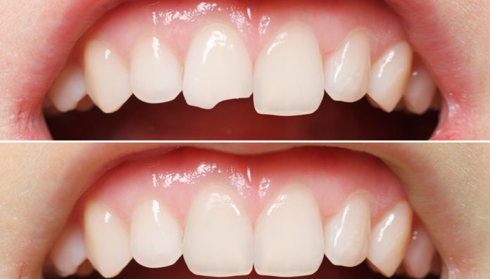 Broken Cracked Tooth Treatment Innovative Smile Dental Clinic