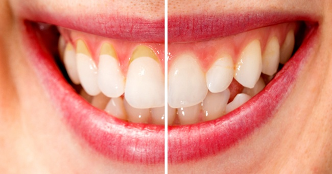 Receding Gums Treatment in Bhubaneswar - Gingival recession